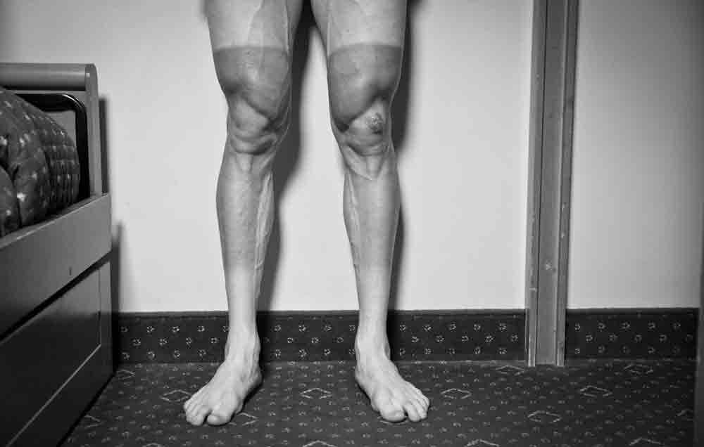 quads-main-gettyimages-494333913-1