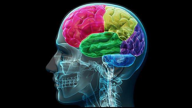 brain-809